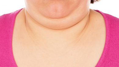 Causes Of Chin Fat: How to Get Rid of Chin Fat? Best Ways to Get Rid Of Chin Fat